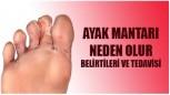 Ayak mantarı nedenleri – Belirtileri – Tedavi yolları nedir?