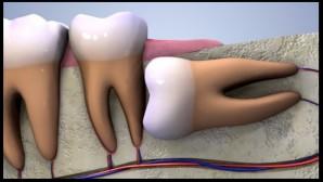 20'lik diş ağrısına bağlı Migren ve tedavi yolları
