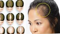 Evde Saç Çıkarma (kellik) Doğal, Bitkisel Çözümler